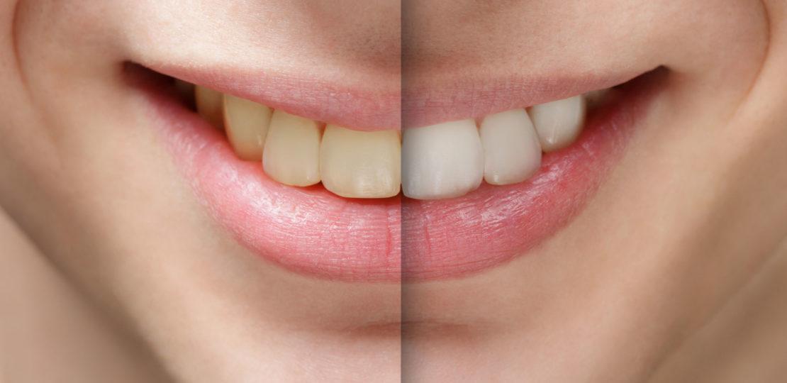 Saiba Tudo Sobre Oral B 3d Whitestrips Minhasaude