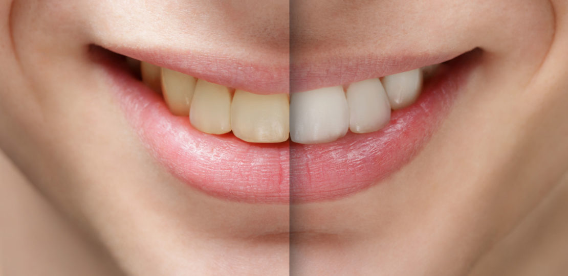 Saiba tudo sobre as fitas clareadoras Oral B