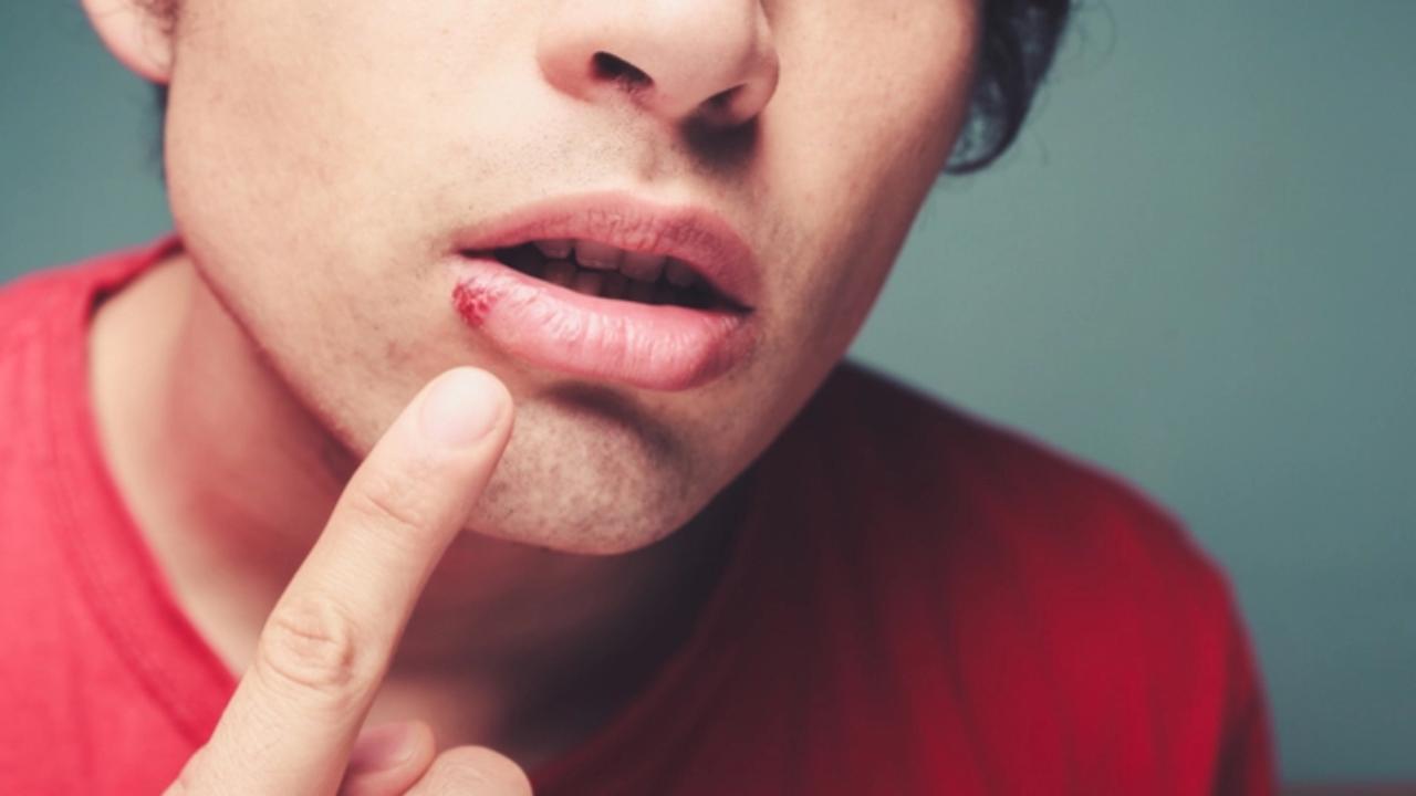 Causas herpes labial estres