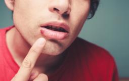 Herpes labial e herpes genital: saiba mais sobre as doenças