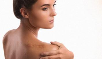 Cicatricure Gel realmente reduz cicatrizes?