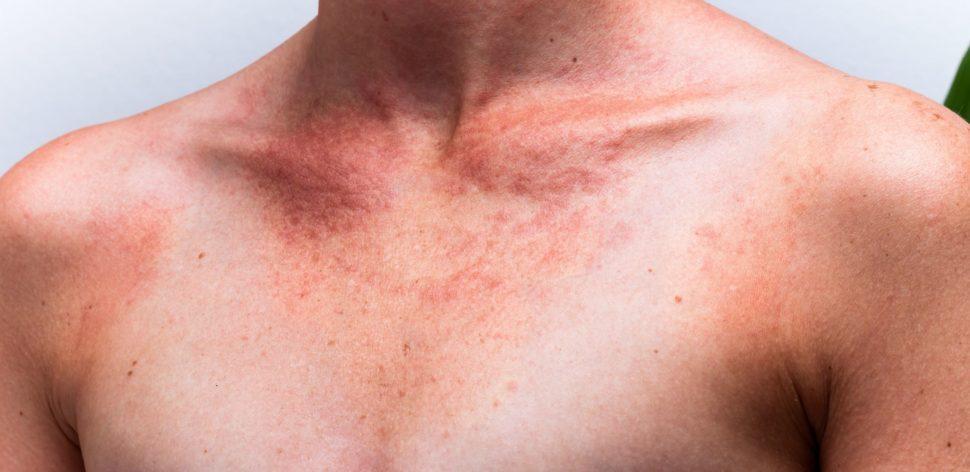 Por que o câncer da pele é tão comum no Brasil e como você pode se prevenir?