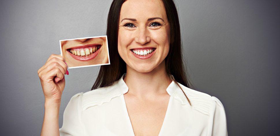 O que é fato e o que é fake no clareamento dental
