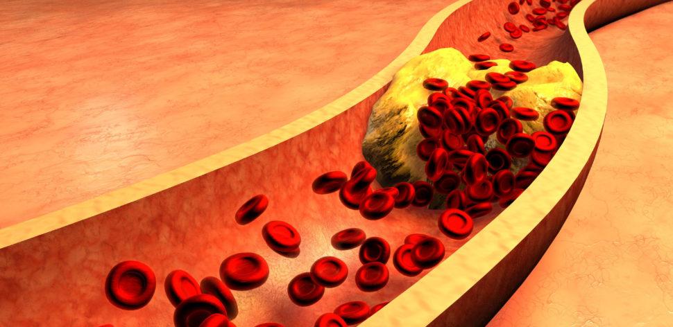 Saiba o que é o colesterol e como mantê-lo sob controle